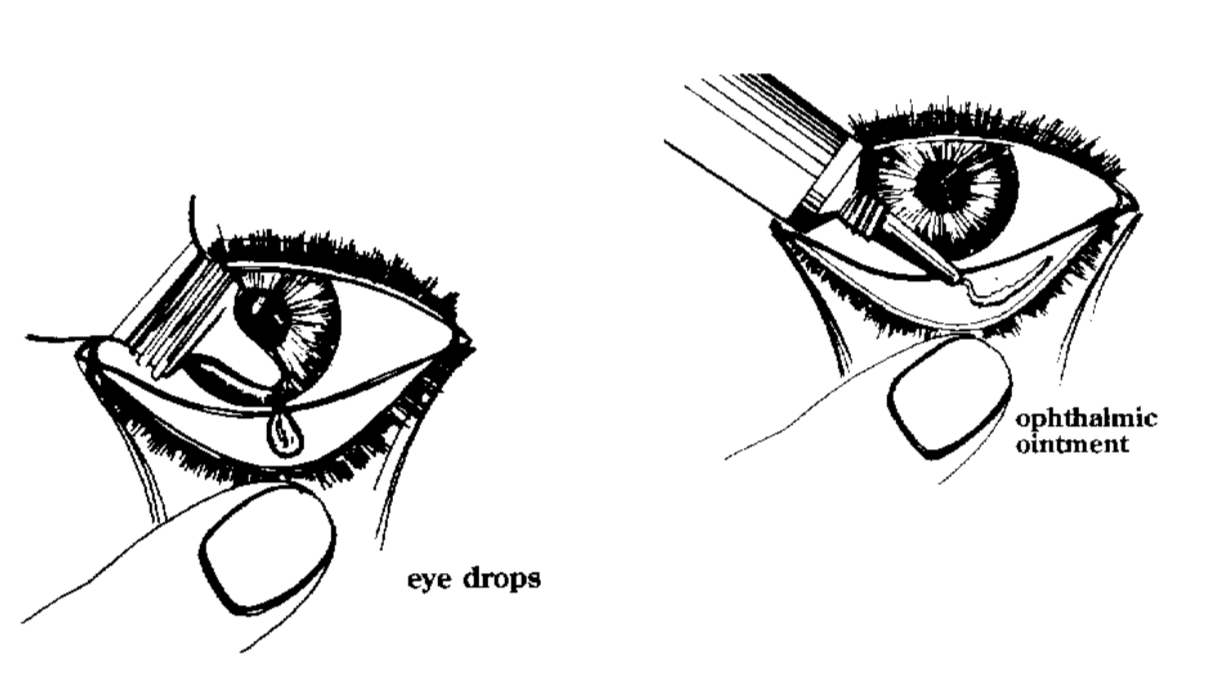 eyedrop and ointment application techniques