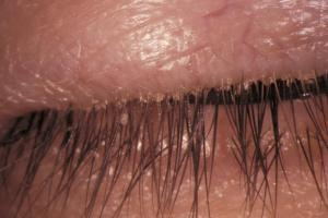 Eyelid with signs of seborrheic blepharitis
